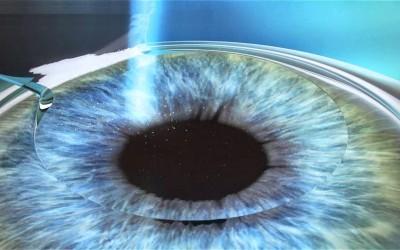 Cirugía refractiva para volver a ver como antes